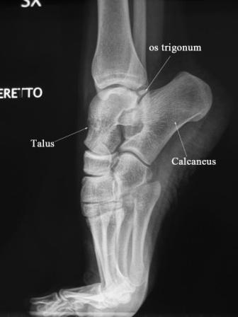 Lateral Demipointe Compressed - Xray of Ankle