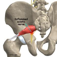 Piriformis Syndrome low back pain