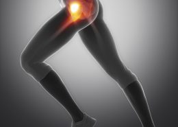 Hip pain running doctor San Diego
